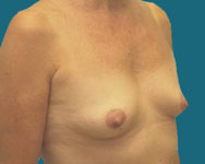 pre surgery of the breast