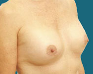 post breast surgery 2 months