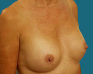 post breast surgery one year