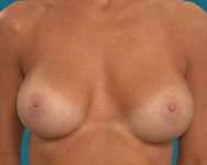 post op breast surgery in atlanta