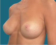 after breast procedure