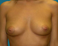 breast surgery patient