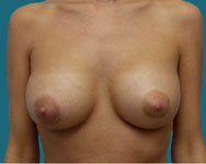 atlanta breast surgery patient