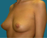 elliott breast surgery patient pre surgery