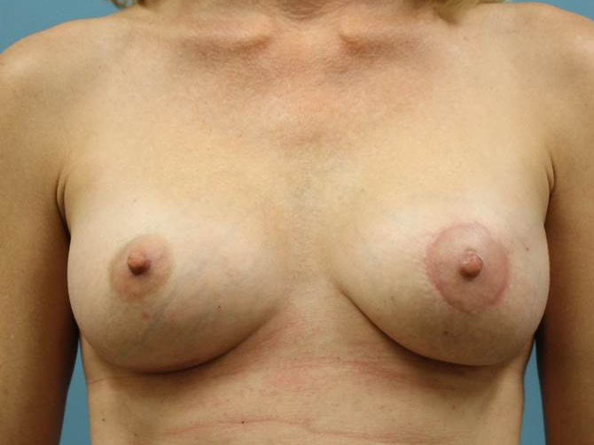 post op breast sug elliott