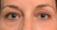 Eyelid Surgery (Blepharoplasty) atlanta ga
