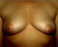 before breast reconstruction surgery using tram flap