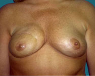 after breast reconstruction using tram flap