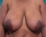 nipple reconstruction with tram flap surgery