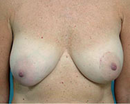 scarless latissimus pre breast recon surgery