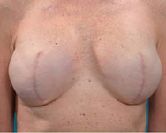 post scarless latissimus breast reconstruction surgery