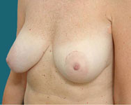 profile view pre scarless latissimus breast surgery