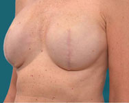 profile view post scarless latissimus breast surgery