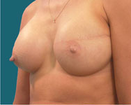 after breast recon using implant and tissue expander