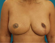 tram flap and nipple reconstruction