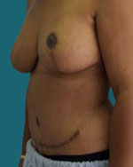 post breast reconstructive surgery using tram flap