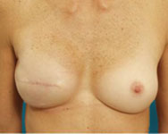 Breast Reconstruction Using Scarless Latissimus (No Scar on the back)
