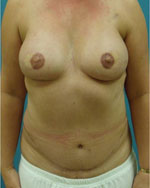 after final breast recon surgery