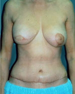 post tram flap breast reconstruction surgery