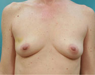 breast reconstruction atlanta