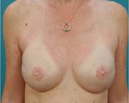post breast reconstruction atlanta