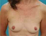 alpharetta breast reconstruction