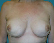 post Bilateral Nipple Sparing Mastectomies with breast recon using an implant