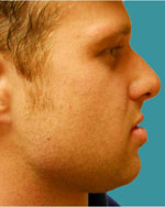 alpharetta chin implants