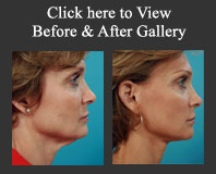 cosmetic surgery gallery