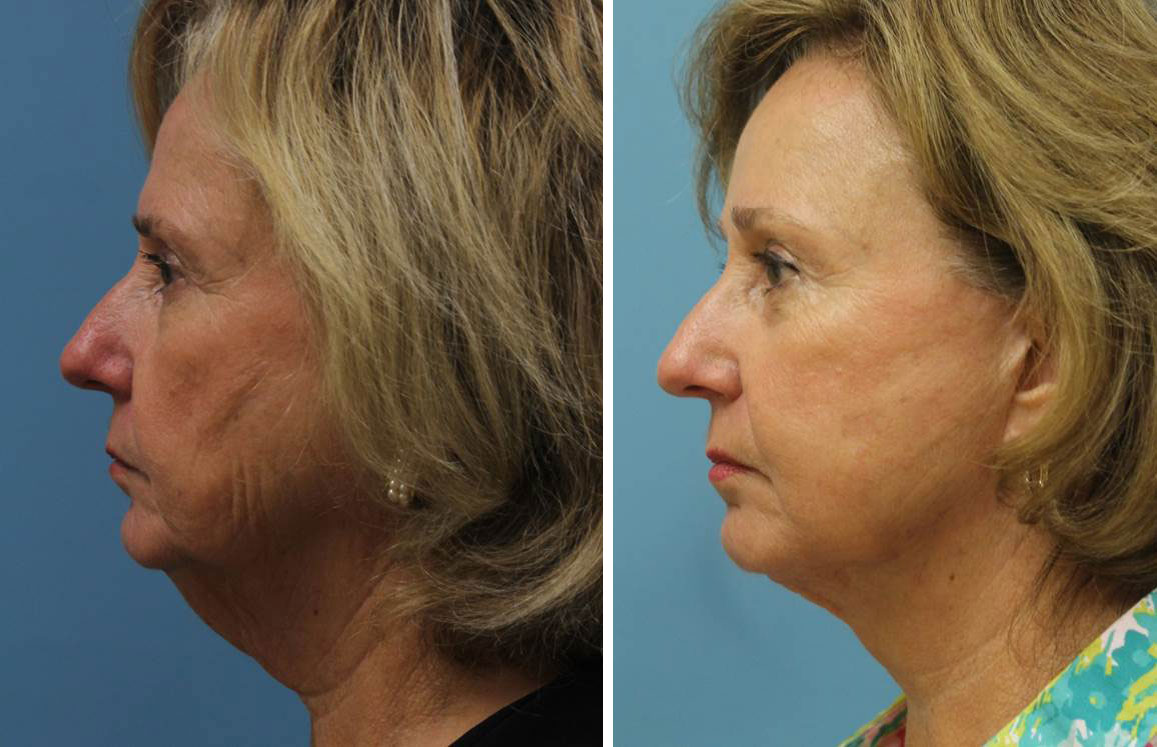 Facelift (Rhytidectomy)