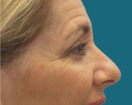 profile view pre browlift surgery