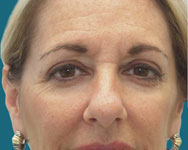 endoscoptic brow lift