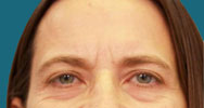 before endoscopic brow lift