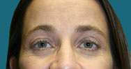 after endoscopic browlift surgery