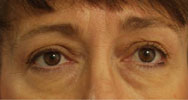 endoscopic browlift and blepharoplasty