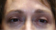 after eyelid lift and forehead lift