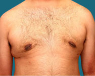 after male breast reduction surgery