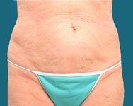 dr elliott post op liposuction