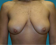 pre Bilateral Vertical breast lift