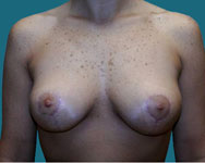 post Bilateral Vertical breast lift