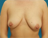 Breast Lift Mastopexy Surgery