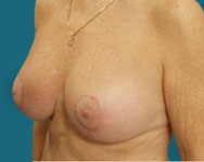 dr elliott post breast lift