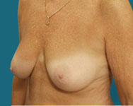 dr elliott pre breast lift