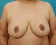 post op breast reduction surgery