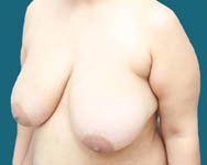 angle view of breast reduction
