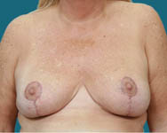 breast reduction post