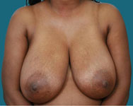 atlanta breast reduction surgery