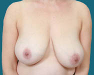 breast reduction dr elliott