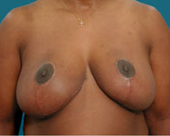 post surgery for breast reduction