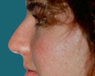 pre rhinoplasty nose surgery